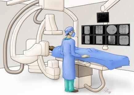 Estudo Eletrofisiológico: o que é e para que serve?