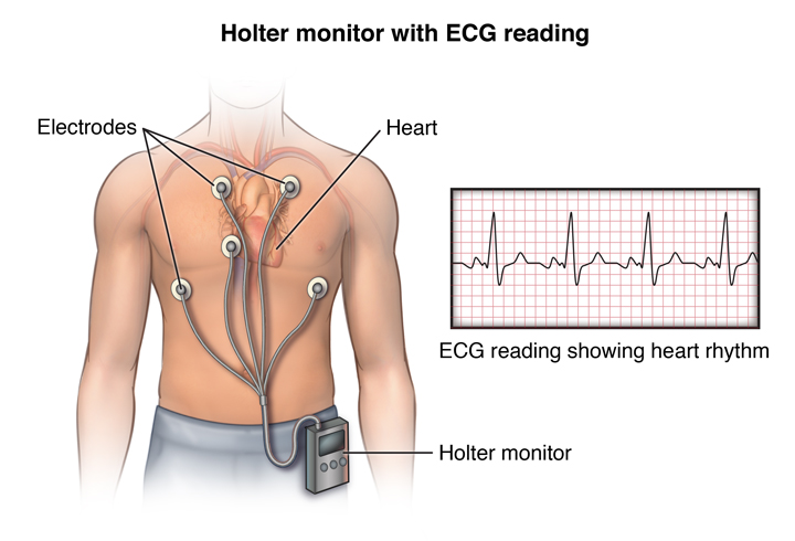 Holter 24 Horas: O que é? Como se realiza? Para que serve?